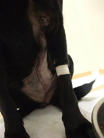 乳腺腫瘍片側摘出跡